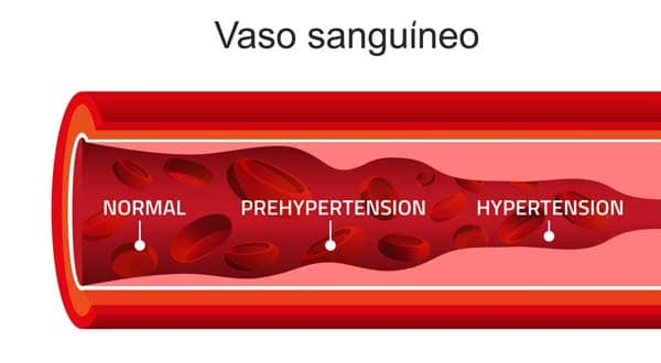 que es la tension arterial hipertension o hipotension